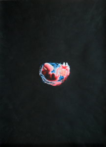 foetus-quadro-giulio-mainardi